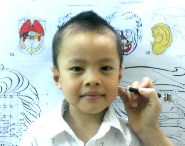 Lớp học Diện Chẩn cơ bản - Kỹ thuật xác định huyệt trên mặt